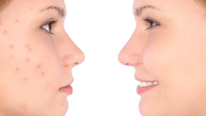 8 Cara Menghilangkan Jerawat Dan Bekasnya Di Wajahmu Kepogaul