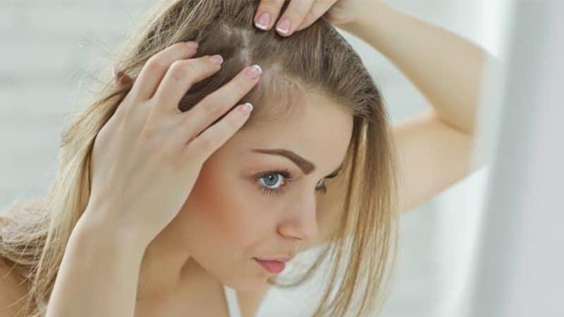 Penyebab Rambut Rontok pada Wanita - Infeksi pada Rambut Wanita