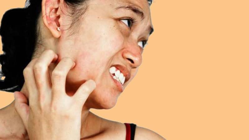 Cara Memutihkan Wajah dengan Cepat - Kulit Wajah yang Gatal