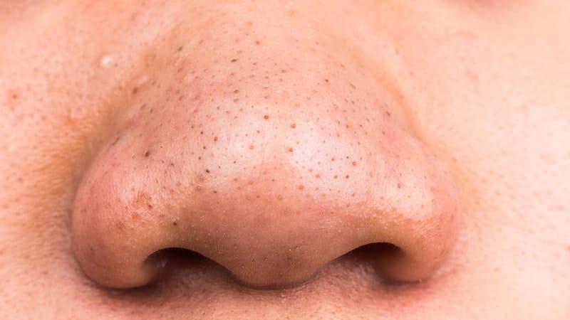 Cara Menghilangkan Komedo Hitam di Hidung - Hidung Berkomedo