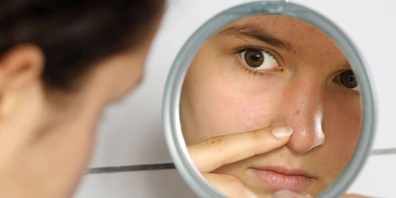Penyebab komedo di wajah - Memencet komedo